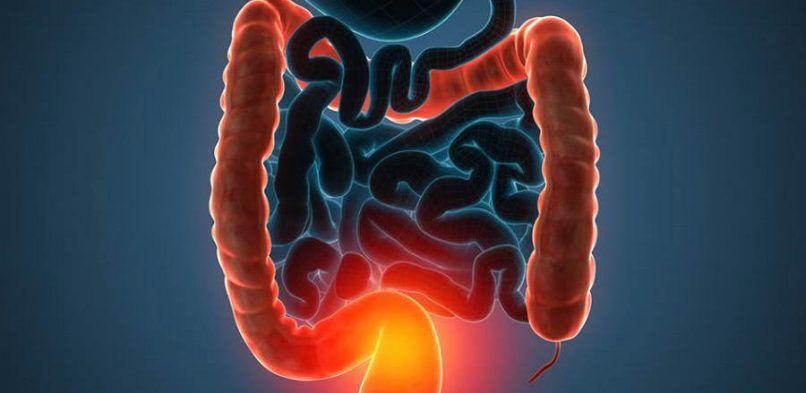Enfermedad Inflamatoria Intestinal (EII) y su relación con la vitamina D